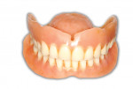 Fig 14. The existing denture as represented in the patient's smile.