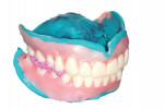 Fig 26. Due to the proprietary design and production of the try-in, after records are complete and scanned, the try-in itself can be processed via normal relining/rebasing procedures to produce an economy denture as a backup or transitional/healing prosthesis.
