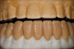 Figure 6  Full contour wax-up of the e.max Press crowns.