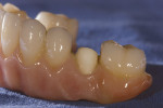 Figure 10  Ten of the 12 tooth restorations were bonded into place on the zirconia substructure.