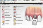 Figure 5  Consult-PRO™ Dental Patient Education Software 2011 provides detailed information from every dental specialty, from general dentistry, implants, oral surgery, periodontics, orthodontics, and endodontics.