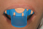 Figure 1  Using a PVS/sectional tray template, the rubberized-urethane provisional resin (TuffTemp) was placed and the template seated in the maxillary arch.
