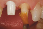 Figure 2  Crown preparations for an implant–abutment maxillary right central incisor and natural-tooth left central incisor. A water-soluble lubricant (Wink) was painted on the prepared surfaces as a release agent.