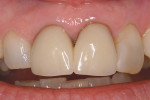 Figure 1  Preoperative view of existing pressed all-ceramic crowns.