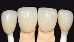 Figure 4  Lithium-disilicate veneers on custom-shaded stump dies matched to Captek Nano crowns on teeth Nos. 8 and 9.