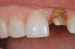 Figure 6  Deep shoulder preparation on discolored non-vital tooth No. 9.