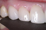 Figure 11&ensp; The laboratory fabricated single-unit IPS e.max<sup>®</sup> Press restorations; the patient was very pleased with the final results.