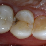 Figure 1  The maxillary first premolar presented with previous direct-composite resin veneering and proximal decay.