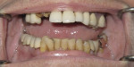 Figure 1  Patient presented with multiple missing teeth and remaining teeth with a poor prognosis.