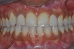 Figure 2  The completed case at 1 year. Note the gingival symmetry created with the use of an anatomically correct surgical template fabricated through crown-down planning after ridge reconstruction of site No. 7 was successfully completed. Screw-ret