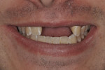 Figure 6  The full smile revealing a low-to-medium lip line.