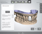 Figure 3  TRIOS's built-in tools for instant clinical validation help to ensure the high quality of the impression and tooth preparation while the patient is still in the chair. Communication is optimized for sharing case information, with the 3-D