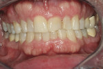 Figure 1  Preoperative view of the patient showing 20-year-old laminate veneers.