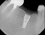 Figure 10  Radiographic confirmation of placement as planned.