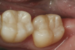 Figure 3  The completed restorations (Esthet-X® HD, DENTSPLY).