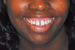 "Figure 1  Presentation before cosmetic makeover. Old, bulky, stained, and chipped composites are present on maxillary anterior teeth. Note the ""gummy"" smile present with a high lip line."