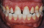 Figure 7  Old composite was stripped from the facial of the anterior teeth, revealing dark, banded teeth.