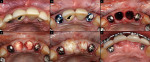 Figure 3  The maxillary right and left lateral incisors were extracted, and implants were immediately placed into the extraction sockets without elevating a flap (A,B). Cover screws were placed over the implants and the maxillary central incisors wer