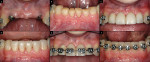 Figure 4  After 6 months, the implants had integrated (A), and the orthodontic brackets were removed to facilitate temporary restoration of the mandibular incisors (B). A provisional bridge was constructed and attached to the maxillary lateral inciso