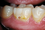 Figure 6a  Caries/decalcification lesion of a permanent molar.