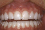 Figure 6  A 3-year postoperative photograph demonstrates excellent esthetic results.