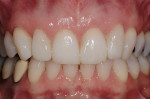 Figure 11  Restoration was achieved with the body shade of a nanofilled resin by thickening of the incisal edges of teeth Nos. 8 and 9 and adding to the distal-facial of tooth No. 7 and to the mesial-lingual of teeth Nos. 6, 7, and 10.