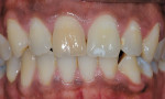 Figure 1  A single dark tooth will bleach well, but may not lighten as much as the other teeth if all are bleached at the same time.