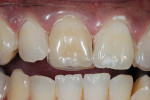 Figure 2  Fabrication of a non-scalloped, noreservoir single-tooth tray allows the dentist to only bleach the dark tooth to determine how well it will respond to bleaching.