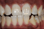 Figure 3  For this patient, bleaching the single dark tooth matched the other non-bleached teeth well, but the single tooth did not get any lighter that the other teeth, so the other teeth were not bleached.