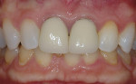 "Figure 5  Use of 10% carbamide peroxide internally in a ""walking bleach style"" with the use of external bleaching using 10% carbamide peroxide in a non-scalloped, no-reservoir tray produces a more esthetic result."