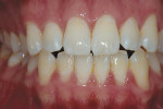 "Figure 7  White spots occasionally go through a ""splotchy stage,"" which occurs in the first few days of bleaching when the white areas respond quicker than normal enamel."
