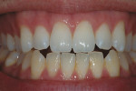 Figure 8  Continuation of bleaching will allow the background of the tooth to lighten such that the white spots are less noticeable. Upon termination, white areas tend to return to their original color.