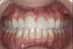 Figure 13  A 40-year-old patient presented with an avulsed left central incisor that had been bonded to the adjacent teeth.