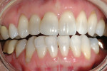 Figure 5  Pretreatment view prior to in-office whitening procedure.