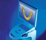 Figure 4 The CEREC 3 system.