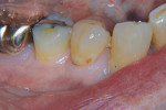 Figure 5  The same patient also presented with decay on tooth No. 28.