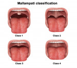 Figure 1 Mallampati classification is determined by looking at the anatomy of the oral cavity.