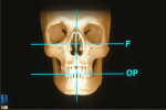 Figure 4  The functional relationship of the maxillary arch to the axis of rotation for proper function (Figure 3) and the esthetic relationship of the maxillary arch to the patient's face for optimal esthetics (Figure 4).